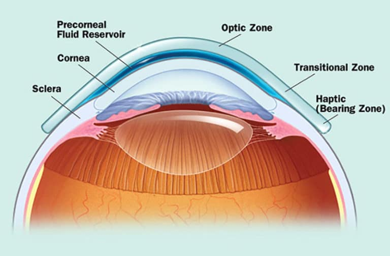 Diagram of how a scleral contact lens is fitted
